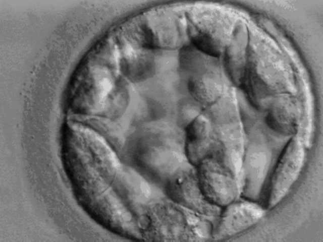 Blastocyst. Source: Wikimedia Commons.