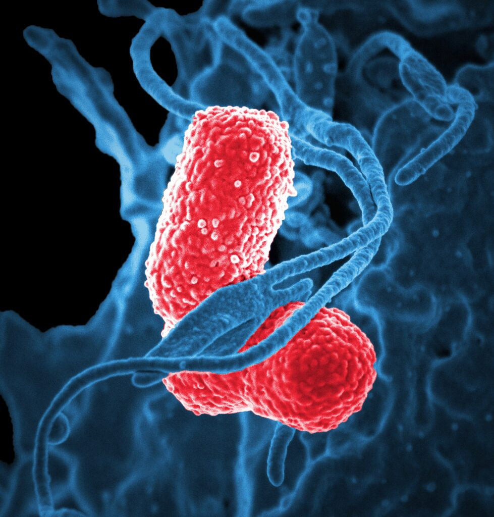 Neutrophil interacting with two pink-colored, rod shaped, multidrug-resistant (MDR), Klebsiella pneumoniae